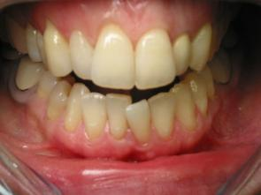 dentiste esth tique soins blanchiment des dents dents jaunies ou tach es clinique dentaire du. Black Bedroom Furniture Sets. Home Design Ideas