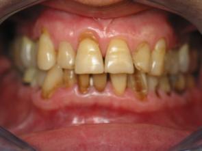 couronnes dentaires c ramique dentaire proth se dentaire reconstruction esth tique dentaire. Black Bedroom Furniture Sets. Home Design Ideas
