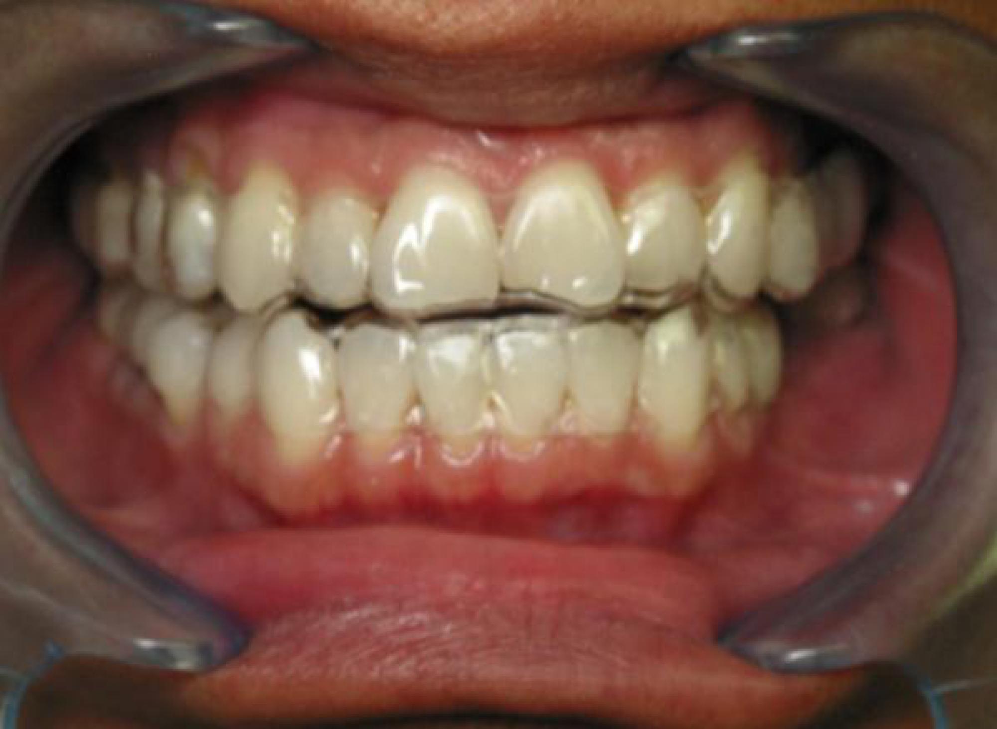 alignement dentaire gouttiere