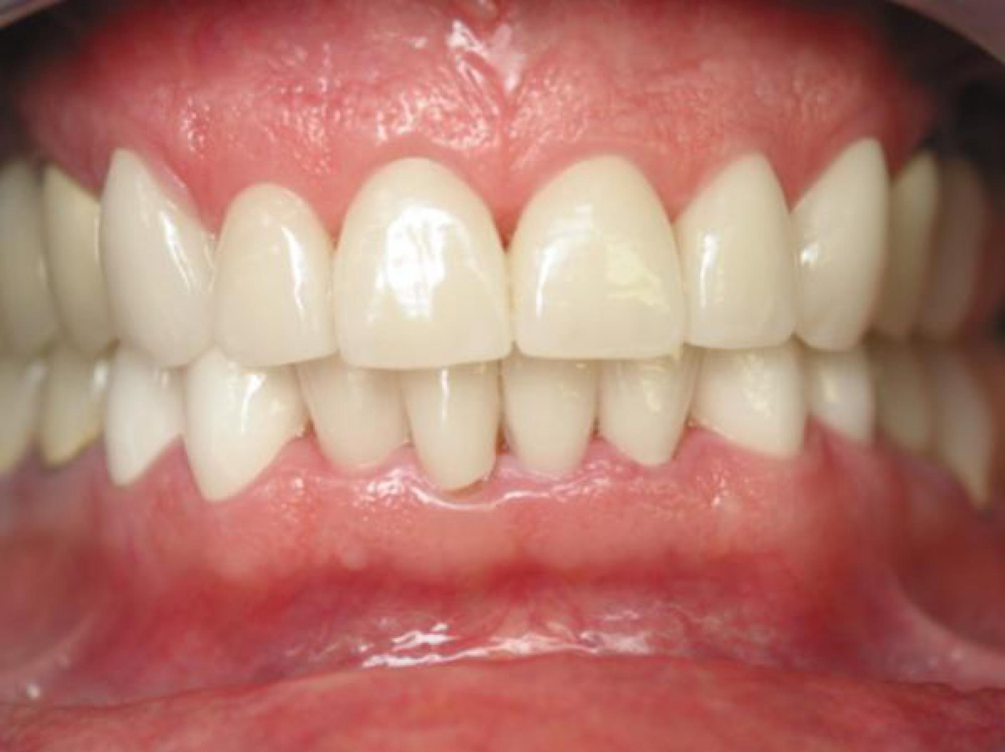 → Dents alignées et blanches   Facettes ou jaquettes dentaires à ... fac98b84d9e0