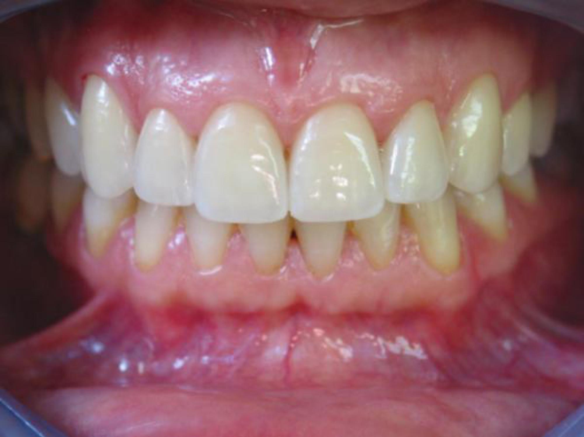 098bf5c34a957a → Dents alignées et blanches   Facettes ou jaquettes dentaires à ...