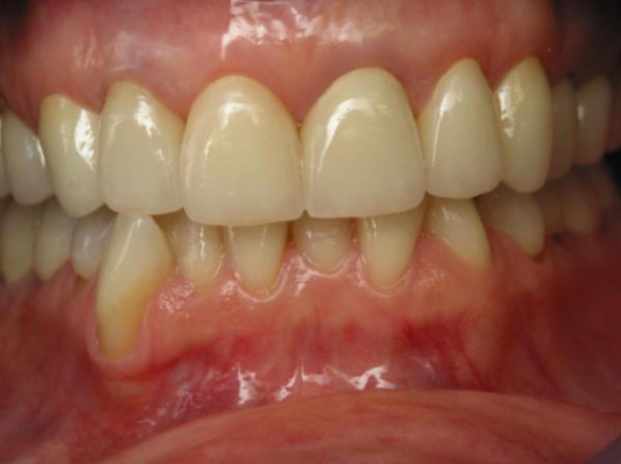 20c6129be556dd Reconstruction par jaquettes sur les dents du haut et blanchiment du bas