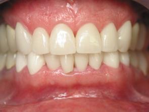 facette ou jaquette reconstruction esth tique dentaire c ramique pour des dents blanches et. Black Bedroom Furniture Sets. Home Design Ideas
