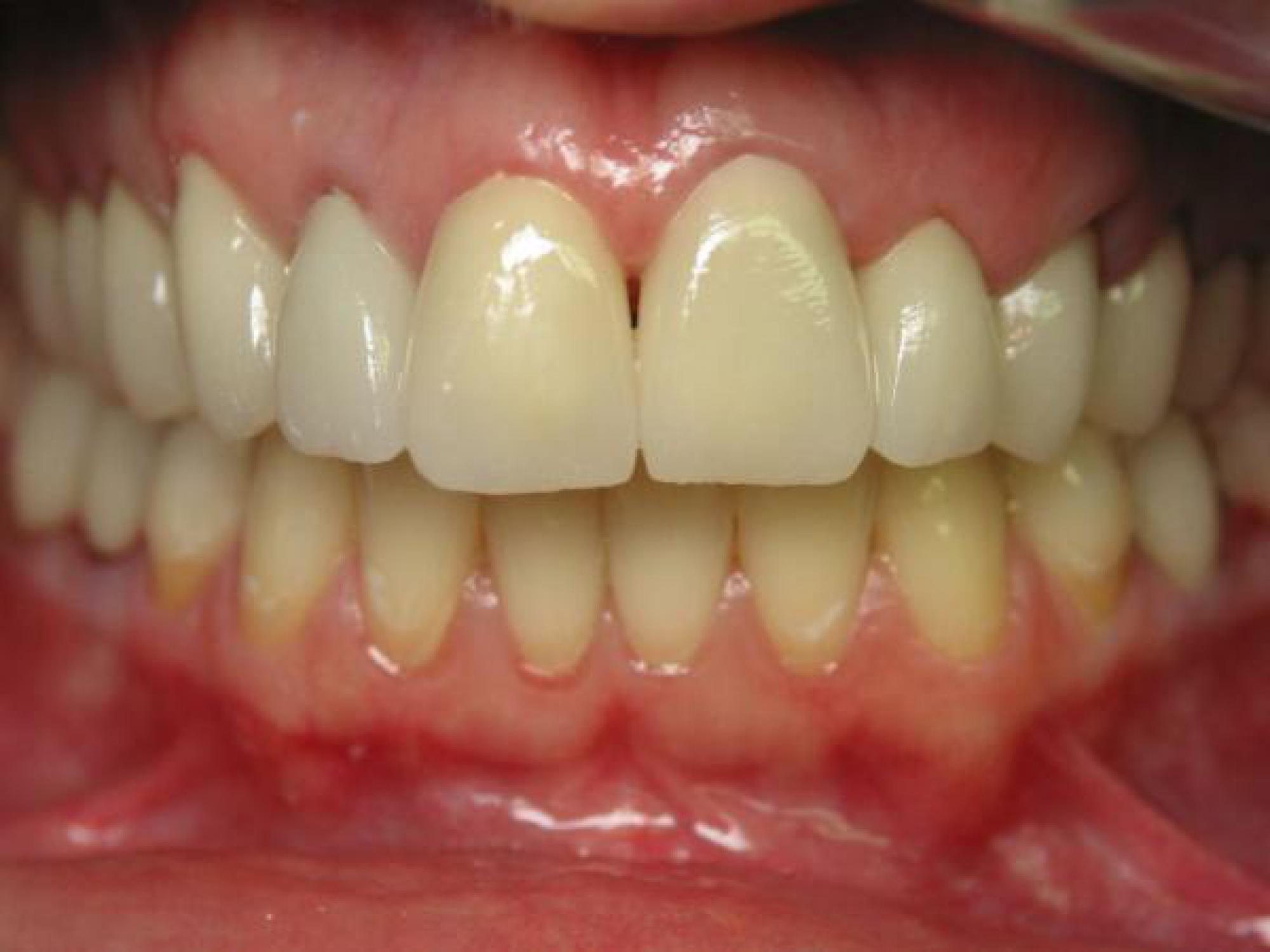 r habilitations esth tiques dentaires t moignages de soins et esth tique dentaires. Black Bedroom Furniture Sets. Home Design Ideas